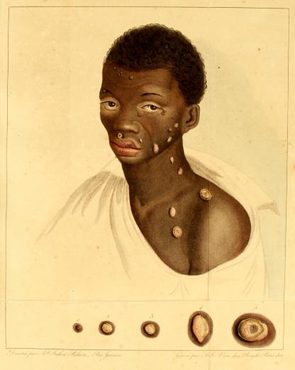 image of an Afro-Brazilian man with skin pustules